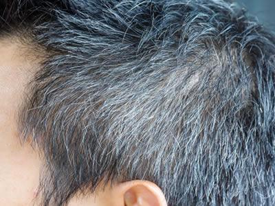 cabelo grisalho transplante capilar